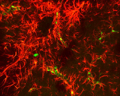 X-CLARITY Col1α1-GFP transgenic mouse spinal cord Courtesy of Jae Lee University of Miami